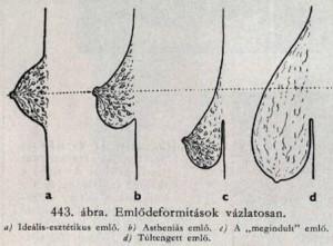 emlő deformitások